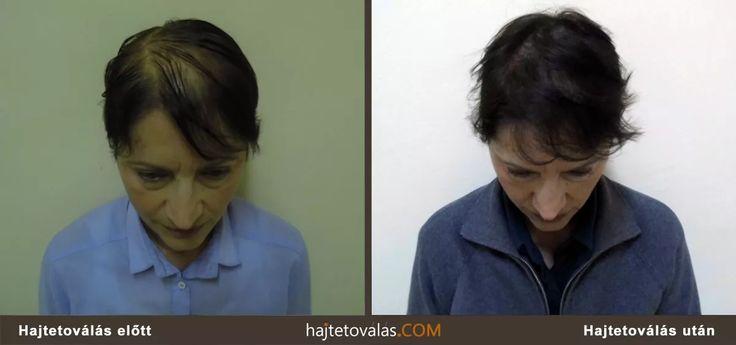 Hajtetoválás nőknek eredmény http://hajtetovalas.com/