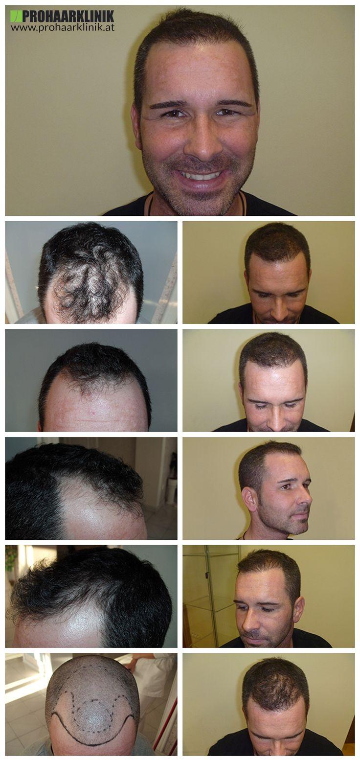 http://www.prohaarklinik.at/haartransplantation-vorher-nachher-bilder/  Haartransplantation Videos - PROHAARKLINIK  Zsolt war sein Haar auf einem Art und Weise wir als typisch zu verlieren. Zwei Tempel, und eine knappe Mittelbereich. Wir könnten mehr zu implantieren, aber für den Patienten Wunsch transplantierten 3500 Haare, die wir glauben, machte ihn sehr glücklich. Von PROHAARKLINIK durchgeführt.