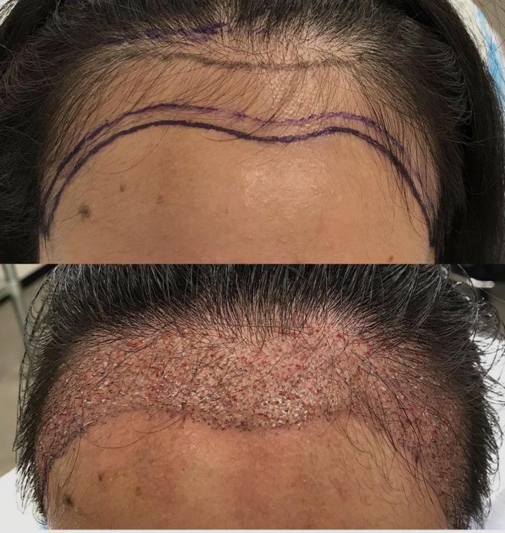 No more high hairline Hair transplant women, Hair