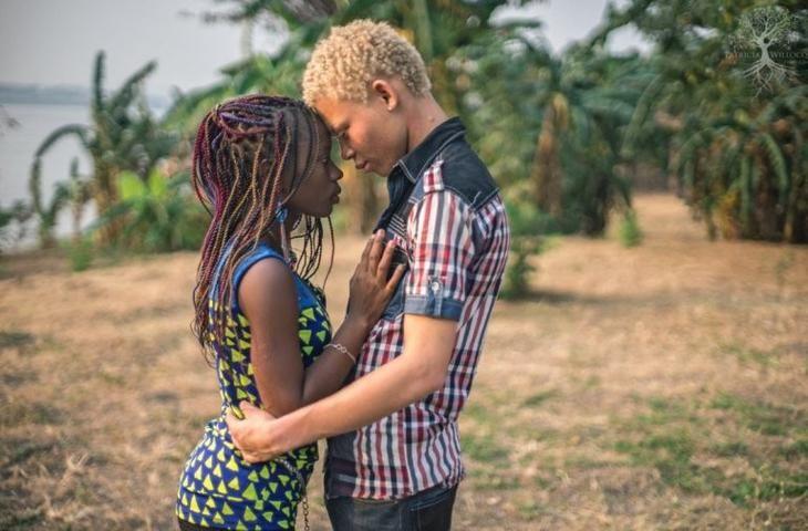 Невероятно: люди-альбиносы в Конго!