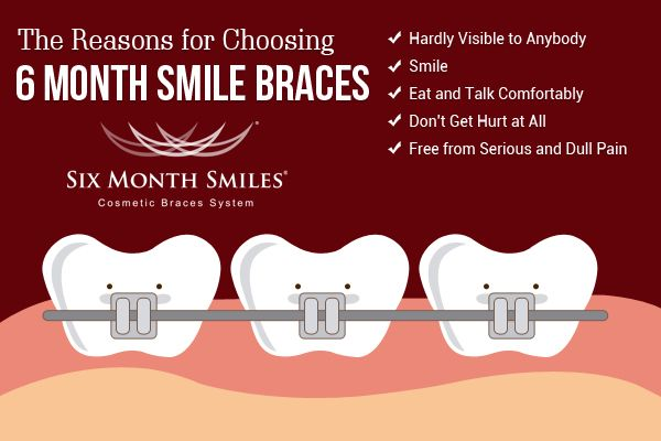 I decide to get Six Month Smile Braces due to it is hardly visible to anybody.