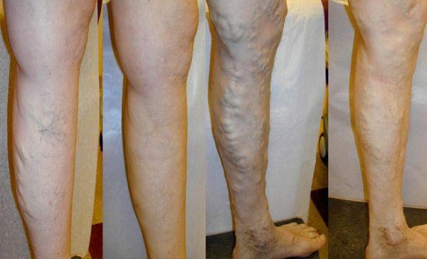 Trateaza varicele, fara operatie, prin scleroterapie ghidata ultrasonic! Rezultate definitive, total nedureros, fara spitalizare! Alege TRATAMENT COMPLET VARICE pentru  1 sau 2 picioare ce contine: consult, ecografie doppler, scleroterapie 1 - 3 sedi