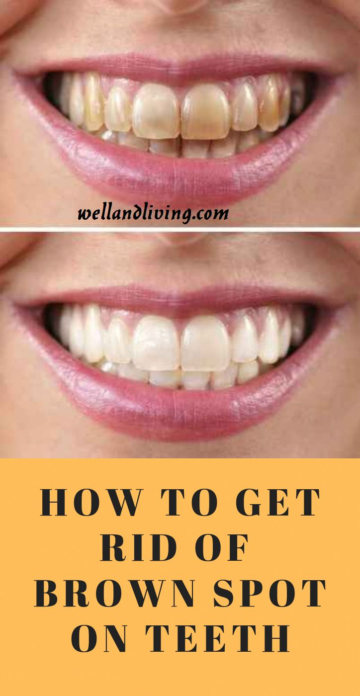 Park Art|My WordPress Blog_How To Get Rid Of White Spots On Teeth At Home