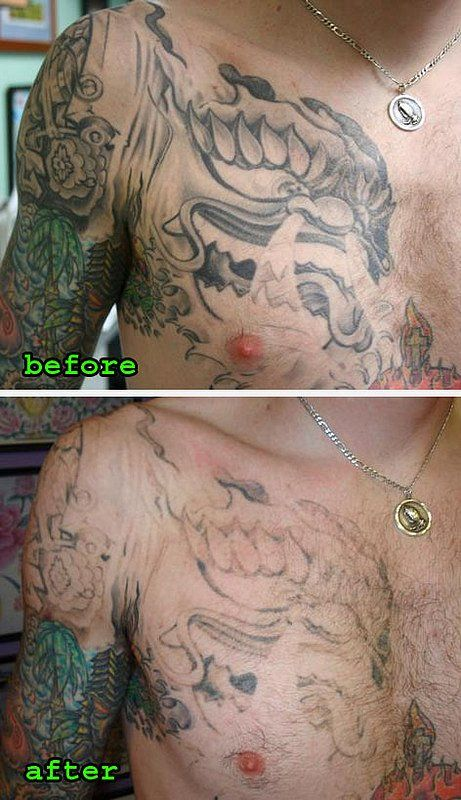 Best 25 natural tattoo removal ideas on pinterest gecko for Removal of temporary tattoos