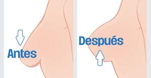Para reafirmar los pechos que empiezan a dar claros síntomas de flacidez y deshinchamiento, existen una gran variedad que soluciones caseras que pueden resultar muy eficaces.