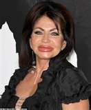 jackie stallone trout pout - Yikes!