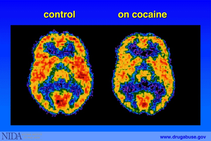 17 Best Images About Addiction Begins In The Brain On
