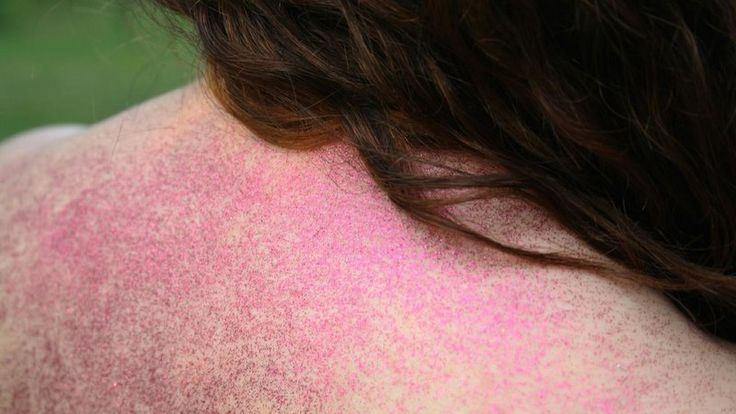 How to Care for Your Sensitive Skin