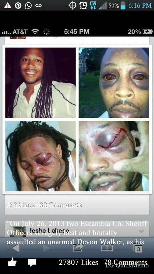Omg STOP POLICE BRUTALITY