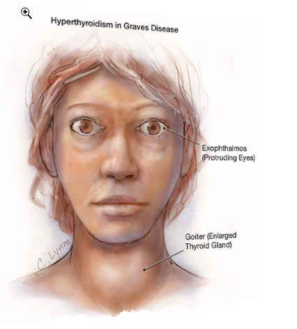 #Graves #Disease #Treatment, Symptoms, Diagnosis, Causes of Graves Disease