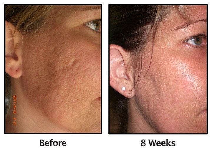 online dating med acne efter otte måneder af dating