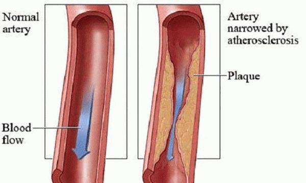 Pomegranates Prevent Coronary Artery Disease Progression
