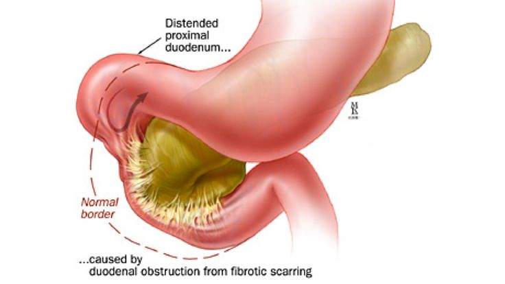 What Can Cause a Duodenal Obstruction  Health  Outdoor