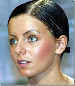 julia-volkova-plastic-surgery-face-lift
