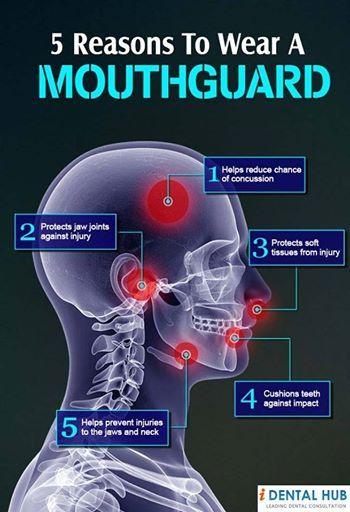 Facts about Mouthguards - Lambert Pediatric Dentistry | #NewYorkCity | #NY | www.tribecapediatricdental.com
