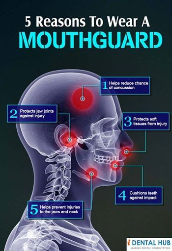 Facts about Mouthguards
