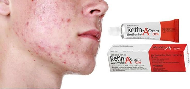 Retin A Scar Cream