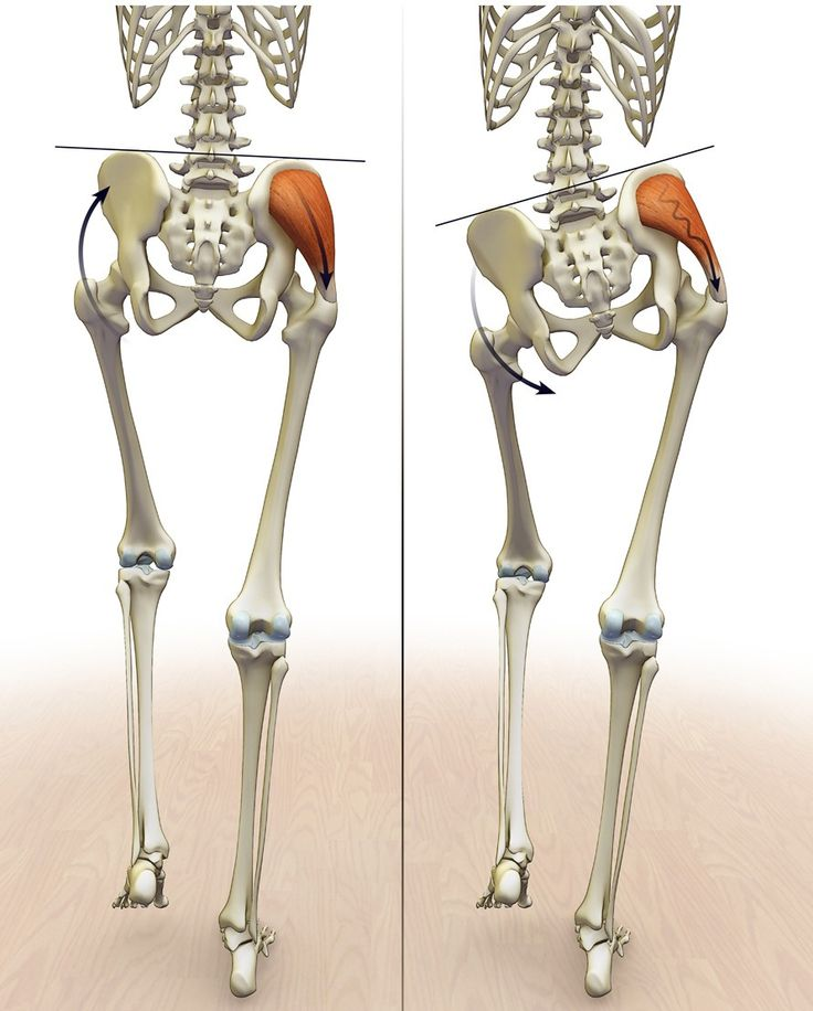 11 best Piriformis Syndrome images on Pinterest   Physiotherapie ...