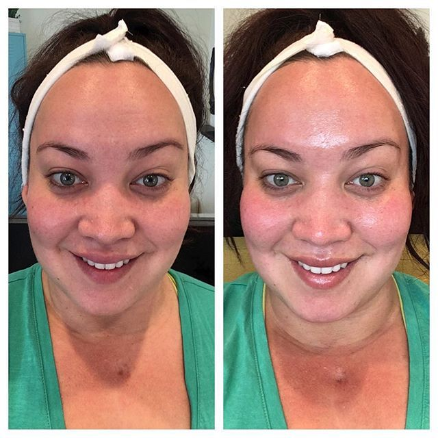 Made some time for myself and took a before and after. There's a wrinkle on the right side of my forehead that has vanished after the treatment I did. Skins definitely lighter, brighter, hydrated and  supple. No filter peeps , Take a look !  I performed a dermaplane, Vibraderm, almond mineral HOT treatment ( which had my skin looking Deep RED for a second ) extractions, rejuvenating gel mask and some light therapy for 20 minutes. ✨✨✨✨✨✨✨✨✨✨✨✨✨ #skincare #vibraderm #solanabeach…