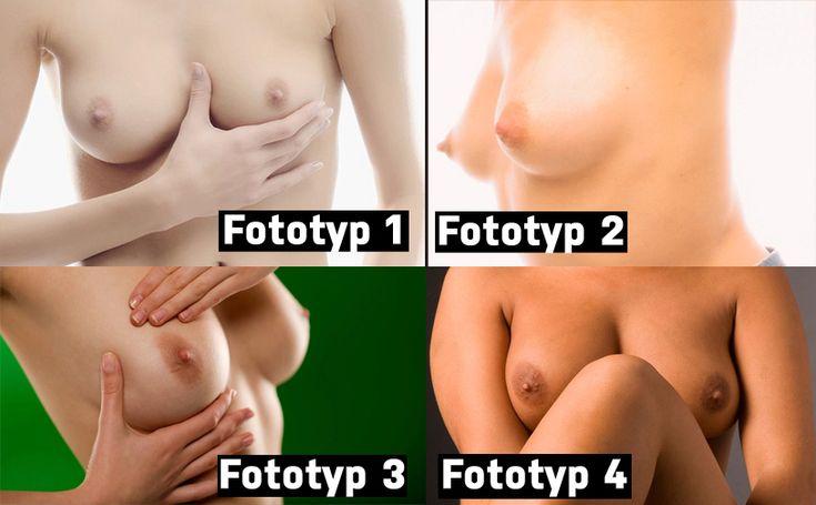 Podle reakce kůže a doby odolnosti proti spálení slunečními paprsky, rozeznáváme 4 typy pleti. Existují i rady, jak rozpoznat fototyp podle barvy bradavek.