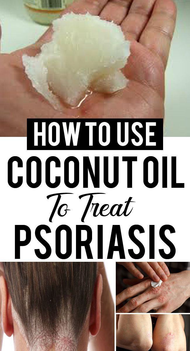 How To Use Coconut Oil For Psoriasis And Scalp Psoriasis Coconut