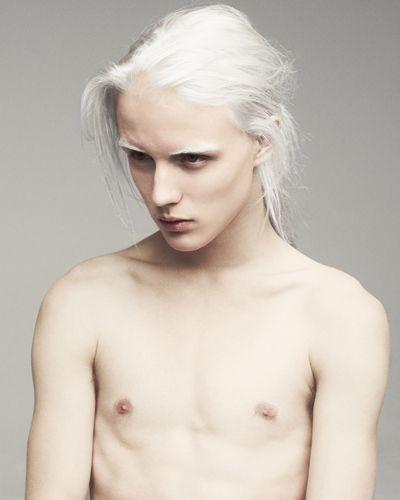 Midget Albinos 15
