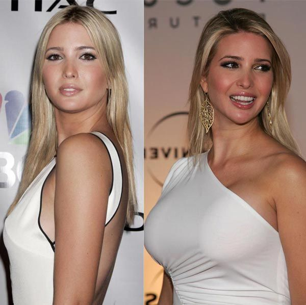 Ivanka Trump Plastic Surgery Reveal - Boob Job & Nose Job - http://plasticsurgerytalks.com/ivanka-trump-plastic-surgery-before-after/