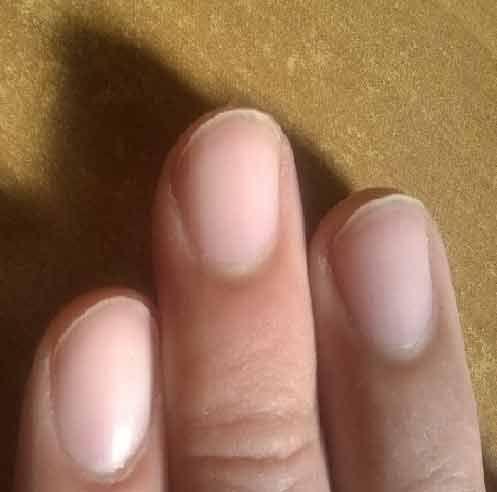 La struttura delle unghie