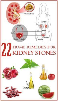 Dissolving Uric Acid Kidney Stones Naturally