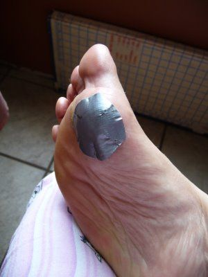 Duct tape for plantar warts. I used this on my son who had two huge plantar warts on his foot. We tried all the other OTC treatments that you can buy and this was the ONLY on that worked! Keep it covered at all times and the wart will suffocate and die with in 3-6 weeks!