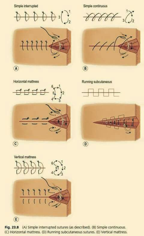 Sutures                                                                                                                                                                                 More