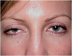 Ptosis caused by myasthenia gravis, damage to oculomotor nerve, interference with sympathetic nerves (Horner's syndrome)  examination of the eye flashcards | Quizlet
