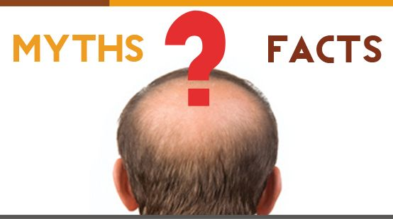 A person suffering from hair loss, over a period of time becomes so anxious and nervous that he starts believing on each and every person who seems to give some solution about the hair loss. Due this the person falls prey to the wrong myths. Here we have discussed some myths about hair fall, click to know more. http://www.askdrshah.com/blog/myths-facts-related-hair-loss/ #hairfall #hairloss #hairlossmyths #hairfallmyths #hairmyths #mythsabouthairloss