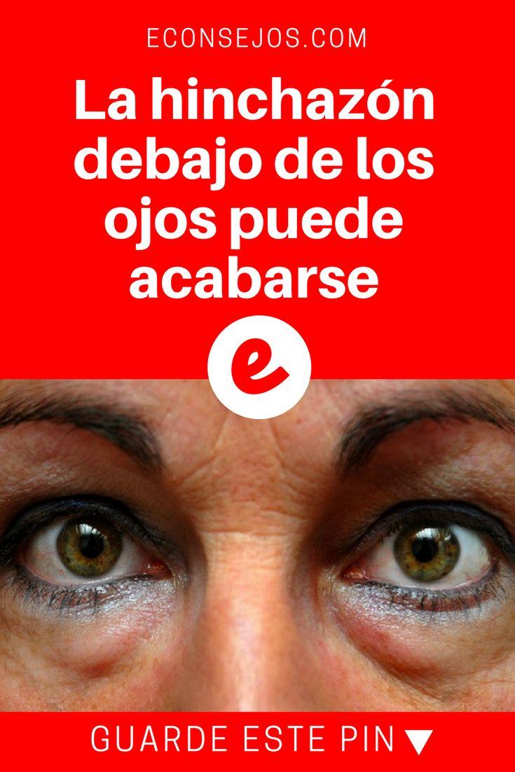 Hinchazon ojos   La hinchazón debajo de los ojos puede acabarse   La hinchazón debajo de los ojos puede acabarse con estos sencillos consejos. --->>>>