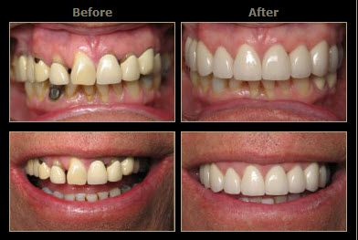 """Dr. Marcano has taken numerous continuing education courses in the Laser and cosmetic dentistry field and he has chosen to tailor his practice into a mostly """"drill-free"""" cosmetic and restorative practice via the use of several lasers."""