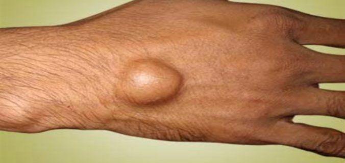 Sve češća pojava koja jako boli: Evo kako da je izliječite, a da ne morate ići ljekaru! – Narodni Recepti