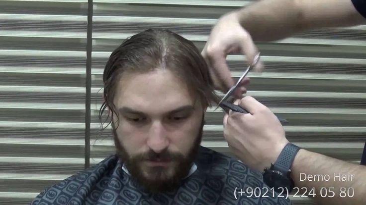 Demo hair protez saç merkezinde saç ekimi,saç protezi ve saç gibi saç sorunu yaşayan kişilere (bayan,erkek,çocuk) cerrahi müdahale gerektirmeden medikal kozmetik uygulamalar yapılmaktadır.Protez saç uygulaması sonrası elde edilen sonuçlar birçok kişinin hayatını olumlu anlamda değiştirdiği ve kişiye özgüven kazandırdığı gözlemlenmiştir.Demohair protez saç firması saç sorunu yaşayan herkese %100 insan saçı uygulaması yapmaktadır.Firmamızın istatistik verilerine göre birçok kişi yapılan…