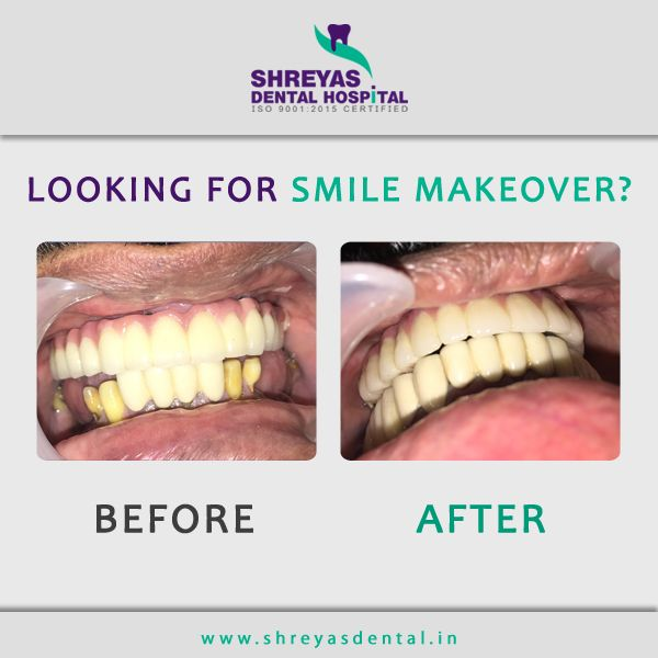 Take the first step to your Smile Makeover! Book your consultation now at Shreyas Dental Hospital and get your perfect smile within 72 hours!  #TeethIn72Hours #ImmediateDentalImplants