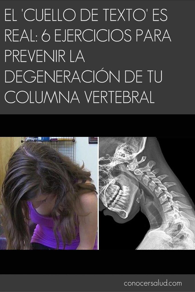 El cuello de texto es real: 6 ejercicios para prevenir la degeneración de tu columna vertebral #salud