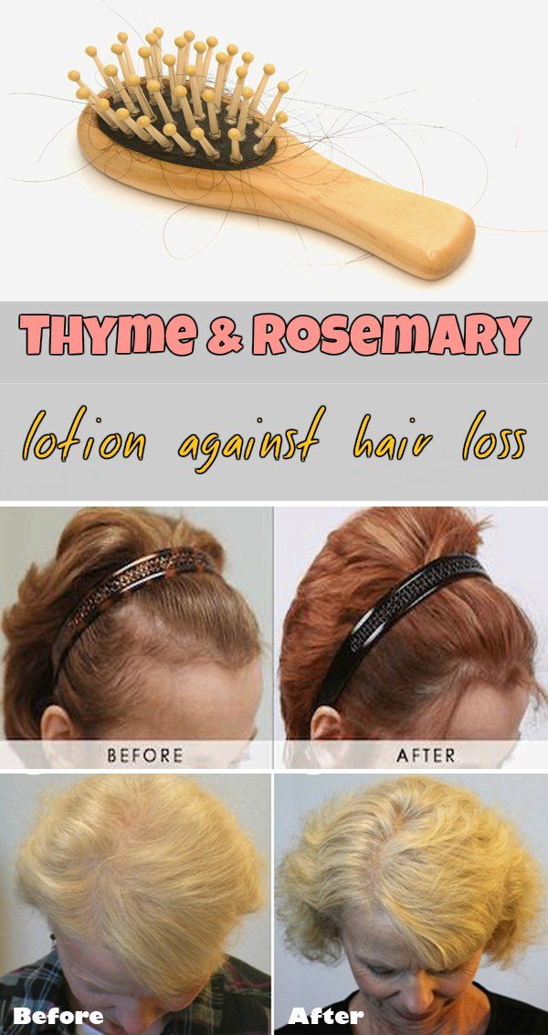 Thyme and rosemary lotion against hair loss - RealBeautyTips.org