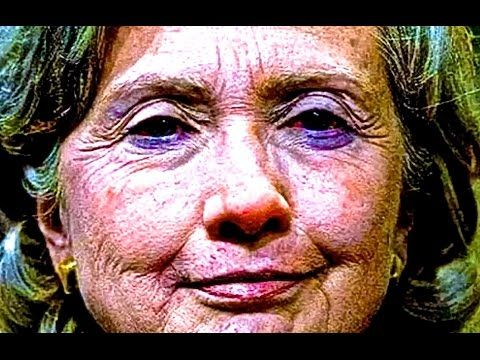 """VASCULAR DEMENTIA: """"Hillary Clinton Has 1 Year to Live,"""" says Medical School Professor – The Phaser"""