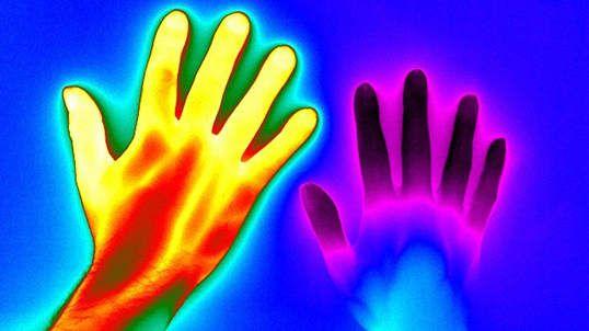 Et une main saine à gauche. Cette maladie cause une baisse de l'afflux de sang dans les mains quand la personne est stressée ou a froid.  #humain #images #santé #anxiété #froid #main #maladie de Raynaud #sang