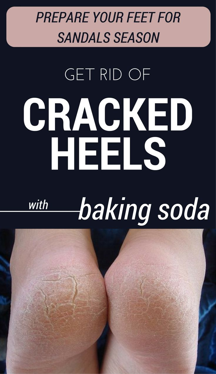 how to clean sandals with baking soda