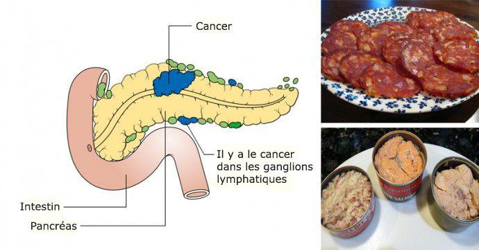 aliments-cancerigenes
