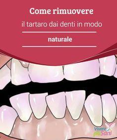 Come #rimuovere il tartaro dai denti in modo naturale Milioni di persone hanno il #tartaro sui #denti. Proprio così, se vi affligge questo #problema, dunque, sappiate che siete in buona compagnia. La #placca batte