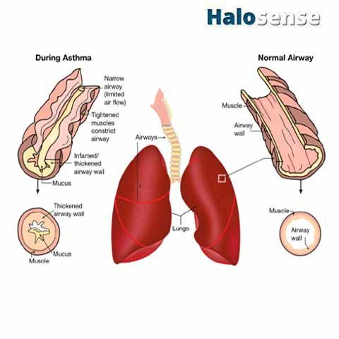 Common Symptoms of Asthma 1-Allergic Asthma 2-Shortness of Breath 3-Chronic Coughing 4-Wheezing #Asthma #SaltTherapy #Symptom #AllergicAsthma #Wheezing #SalineTherapy
