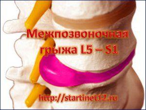 Межпозвоночная грыжа диска L5-S1 лечение