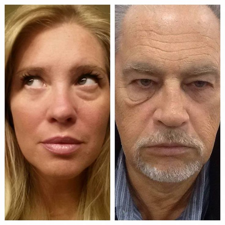 These are before and after photos of individuals using Instantly Ageless.  http://marketbolt.com/jns/ia/s1/?id=ohboy