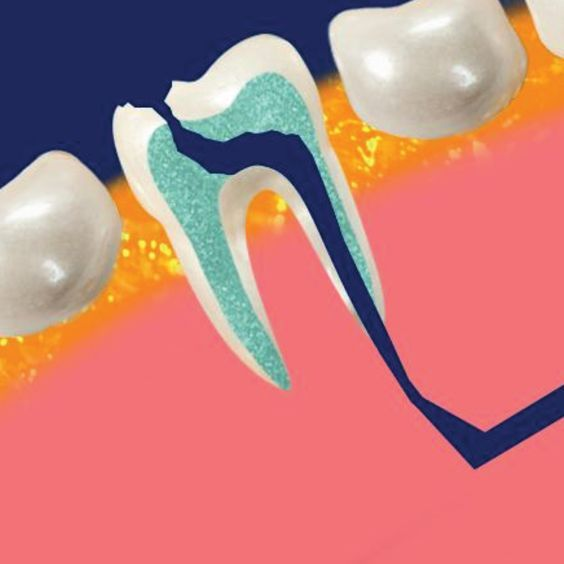 Waiting too long to fill a cavity can lead to infection of the nerve/root and require a root canal to fix.  Get treated at the first sign of damage!  #miltondentist