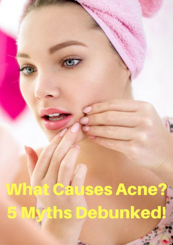 What Causes Acne? 5 Myths Debunked!   From a small zit to a major breakout, pimples are a pain. Here is the truth behind what causes acne and how to beat it.